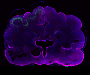 Genetic manipulation in the ferret brain (age: postnatal day 16). Neural stem cells in the left hemisphere were electroporated in vivo 24 days earlier. GFP+ neurons (green) have their cell bodies in the electroporated hemisphere and extend their processes to the contra-lateral hemisphere. Magenta, GFAP (glial cell marker); blue, DAPI (nuclei). Credit: Kalebic et al., eLife 2018;7: e41241.